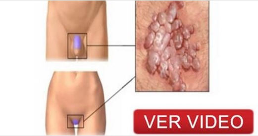 VIDEO: VPH: Todo lo que deberías saber sobre ello