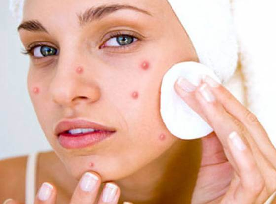 Limit the amount of makeup on pimples
