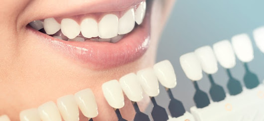 Why we need Cosmetic Dentistry?