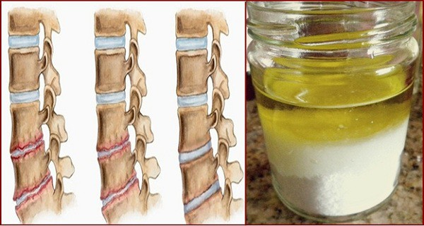 Salt And Oil: Medicinal Mixture,After Its Application, You Will Not Feel Pain For Several Years