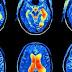Come la lamentela riprogramma il cervello verso ansia e depressione