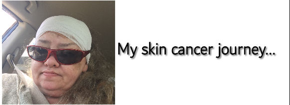 My Skin Cancer Journey