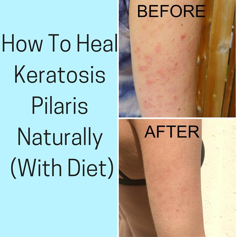 Keratosis Pilaris Lotion Whole Foods