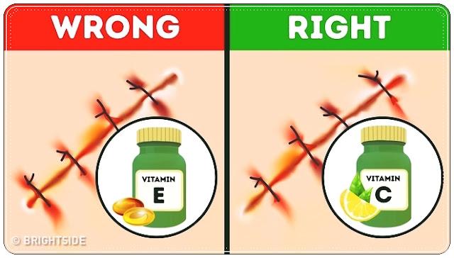 10 طرق فعالة 100%  لإزالة جميع أنواع الندوب ومساعدتها على الشفاء