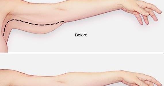 Gimana sih cara ngecilin bagian pinggul sama lengan?