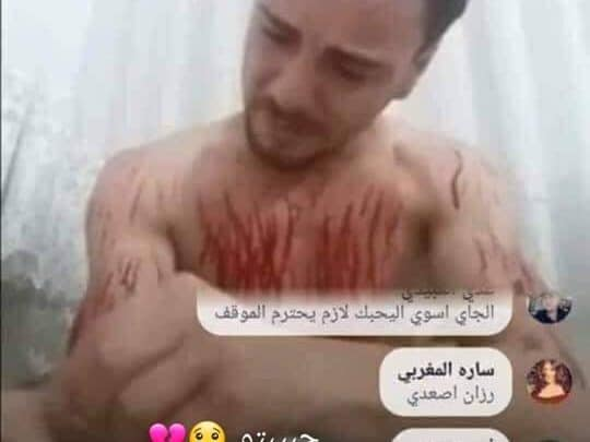 شاب يشطب و يجرح نفسه ببث مباشر على الفيسبوك والسبب عشيقته؟؟!!