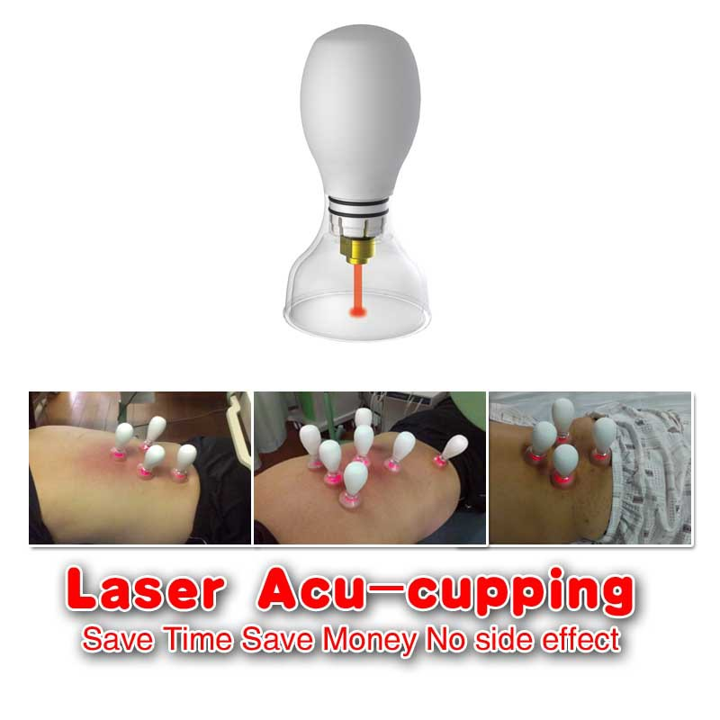 At Home Cupping Therapy: RIGHTBEST MEDIC: Be Distributor Of Laser Acu-cupping