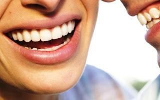 3 Solusi Atasi Bau Mulut dengan Mengetahui 3 Penyebabnya