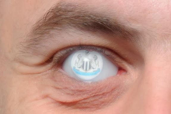 Andrew Canavan shows off his glass eye etched with the Newcastle United crest