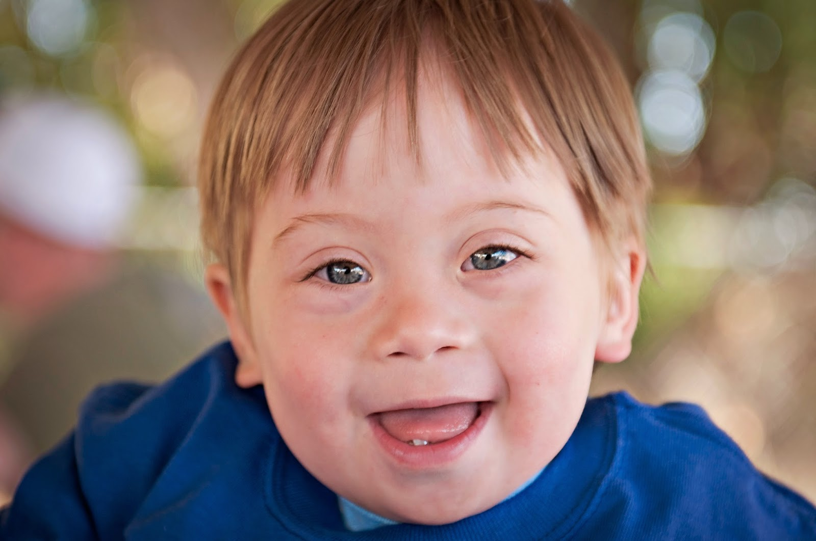 Science In The News Down Syndrome