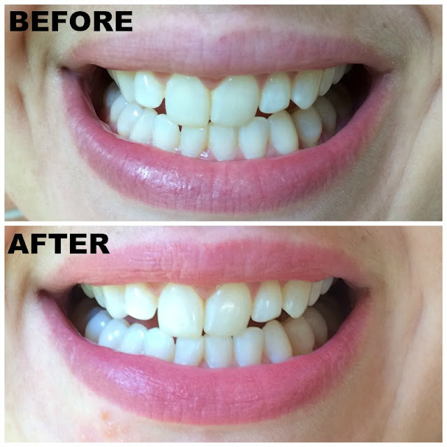 Do you feel like your teeth could be whiter? Whiten at home with Smile Brilliant's professional teeth whitening kit!