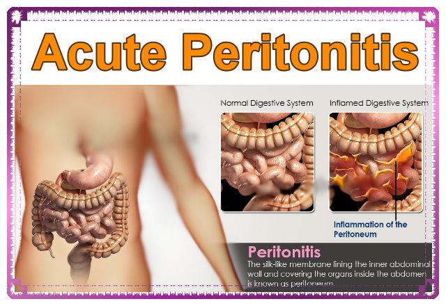 Acute peritonitis