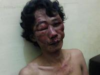 Bah !!! Lumbantobing Ditebas Di Lapo Tuak, Malah Kawanya Yang Tewas Bersimbah Darah