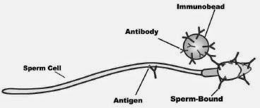 Obat Alergi Sperma (ASA : Anti Sperm Antibody)