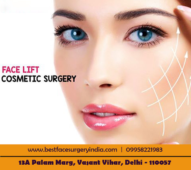 Facelift Cosmetic Surgery in Delhi