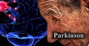 Điều trị bệnh parkinson như thế nào hiệu quả nhất