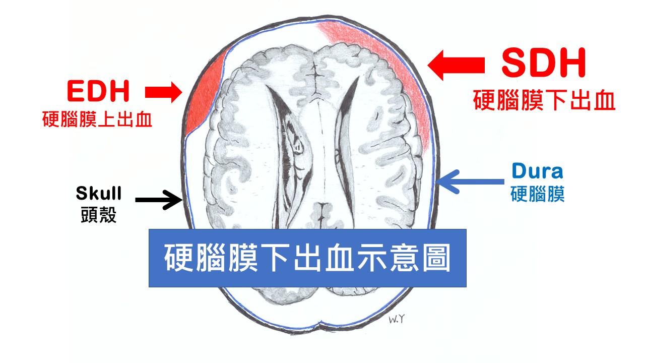 慢性 硬 膜 下 血腫 小心埋伏腦中的「偉大模仿者」!慢性硬腦膜下血腫症狀多元恐致命