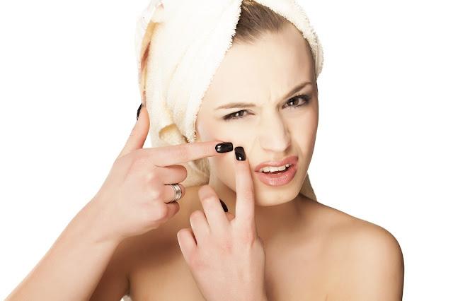 alimentos-causam-acne-espinhas