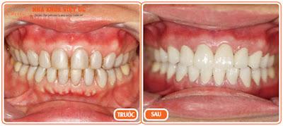 Thao tác mài răng khi bọc răng sứ có nguy hại gì không?