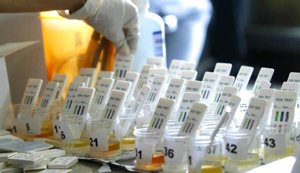 Cara Mengeluarkan Racun Melalui Urine dengan Bahan Alami