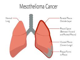 Mesothelioma Cancer Treatment
