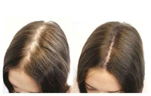 Tóc rụng nhiều làm sao để tóc mau dài