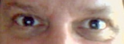 eyes, Sorensen, dilation