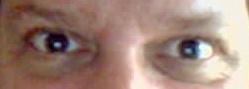 eyes, Sorensen, dilation