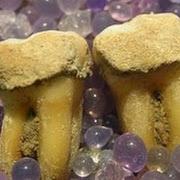 Вчені будуть вивчати раціон стародавніх людей за допомогою зубного каменю