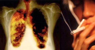 Cara Penularan Kanker Paru Paru
