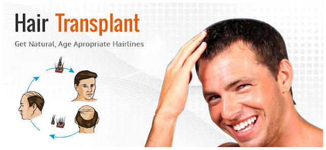 Get Natural Hair Go Hair Transplant Clinic