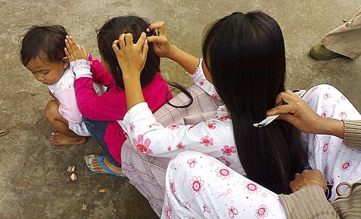 5 cara menghilangkan kutu rambut dengan cara alami