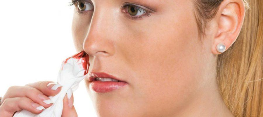 नाक से खून नकसीर बहने पर जल्दी से ये कारगर उपाय करे Quickly take effective action on the bleeding of nose bleeding