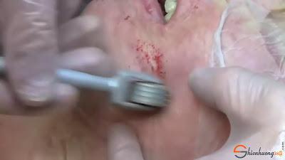 Hướng dẫn lăn kim trị sẹo lõm làm mờ sẹo hiệu quả
