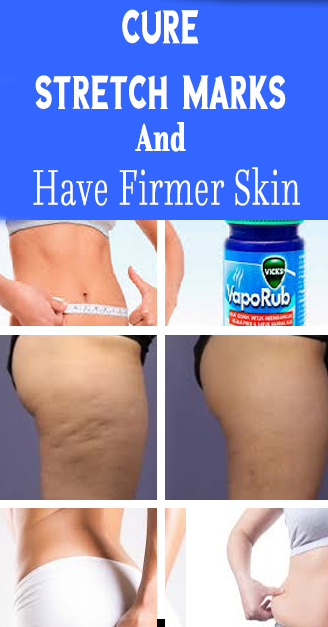 cure stretch marks