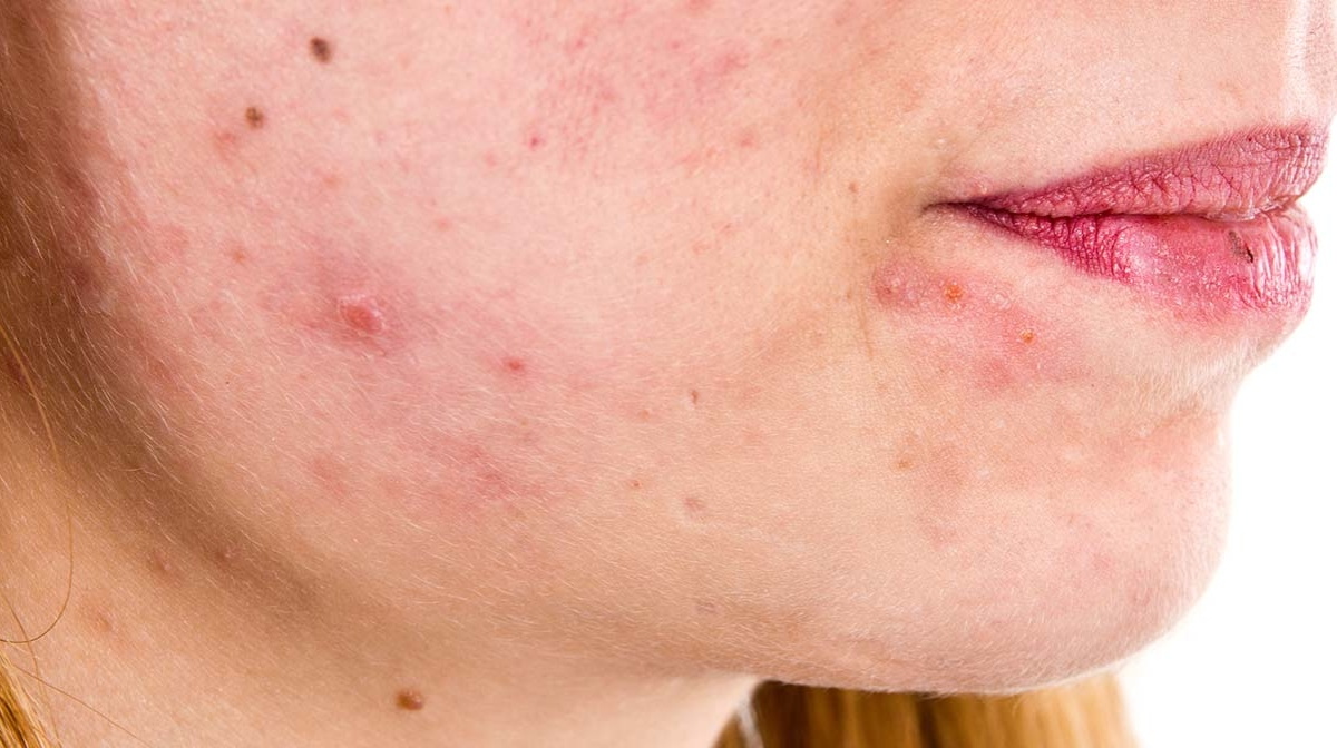Photos Of Eczema On Adults Face  Treatment For Eczema -1357