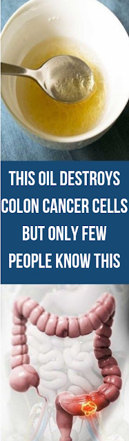 This Oil Destroys Colon Cancer Cells But Only Few People Know This