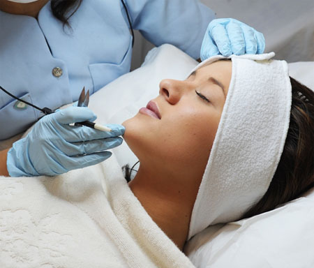 Electrolysis facial hair removal / The luxor hotel deals