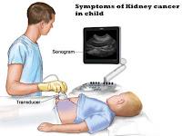 Symptoms of Kidney cancer in child