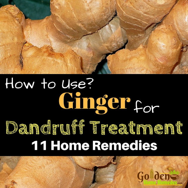 Ginger For Dandruff, Ginger and Dandruff, How To Get Rid Of Dandruff, How To Remove Dandruff, Home Remedies For Dandruff, Dandruff Treatment, Dandruff Remedies, Treatment For Dandruff, Dandruff Home Remedy
