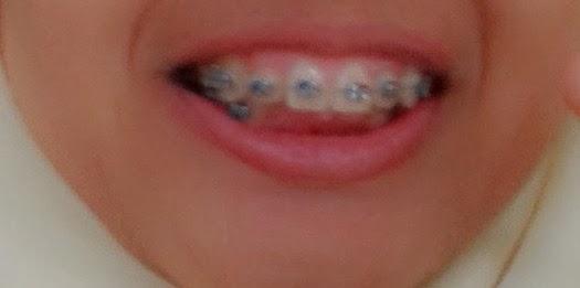 Penulis Biru Pengalaman Pertama Memakai Kawat Gigi
