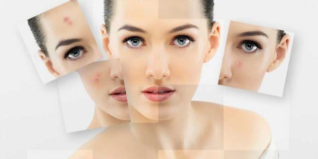 7 Langkah Jitu Atasi Flek Membandel di Wajah