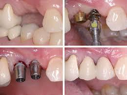 Dento Hub Dental Implant | Dr. Jyoti Sachdeva |
