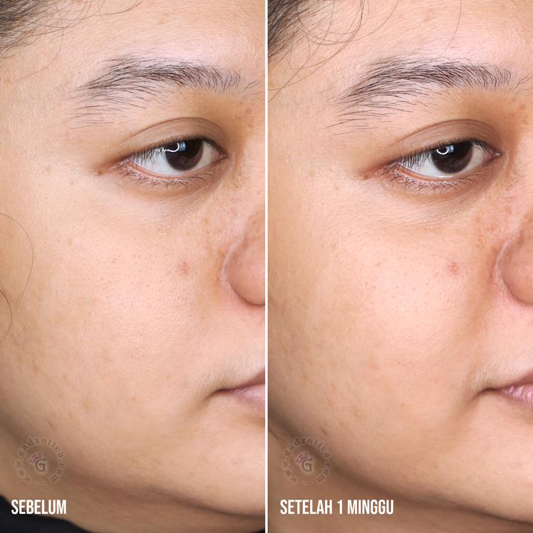 hasil pemakaian base personalized skincare