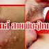 จูบอันตราย!!! ระวัง เอดส์ สายพันธุ์ใหม่ ลูกผสมเติบโตได้ในสิ่งนี้ พบในไทยแล้วแชร์ด่วน!!!
