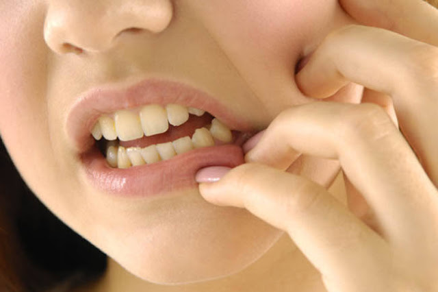 Loose Teeth  treatment in Hindi