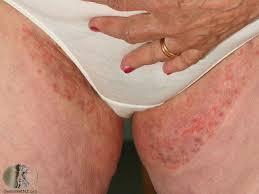 Obat Khusus Gatal Bintik Merah Dan Lecet Di Selangkangan Wanita