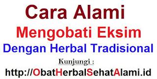 Cara alami mengobati eksim dengan herbal tradisional
