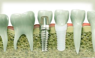 اسعار زرع الاسنان في مصر