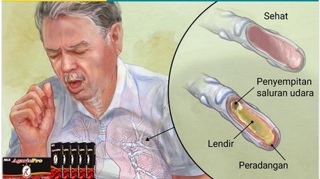 Obat Bronkitis Di Apotik Ampuh Dengan Madu